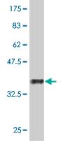 Western blot - Macrophage inflammatory protein 5 antibody (ab77004)