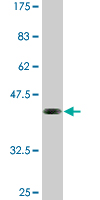 Western blot - ELF5 antibody (ab77007)