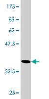 Western blot - RGS20 antibody (ab77009)