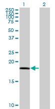Western blot - RARRES3 antibody (ab77010)