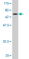 Western blot - TADA3L antibody (ab77011)