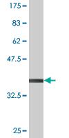 Western blot - ELK3 antibody (ab77012)
