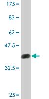Western blot - LYK5 antibody (ab77016)