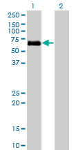 Western blot - BMPR1A antibody [not given] (ab77022)