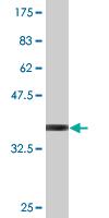 Western blot - eIF4ENIF1 antibody (ab77027)