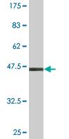 Western blot - SAR1 antibody (ab77029)