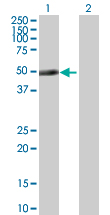 Western blot - AGAP1 antibody (ab77031)