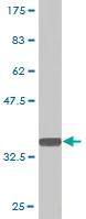 Western blot - PQBP1 antibody [1A11] (ab77041)