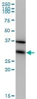 Western blot - eEF1B2 antibody (ab77043)