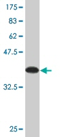 Western blot - MAGED1 antibody [Not required] (ab77045)