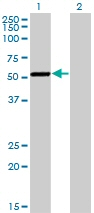 Western blot - CaMKI gamma antibody [Not required] (ab77046)