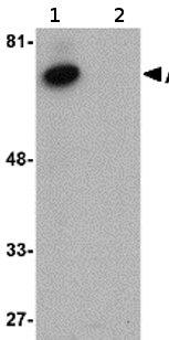 Western blot - Activin A Receptor Type IB antibody (ab77049)