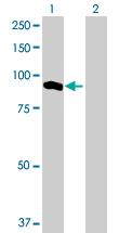 Western blot - UNC45B antibody (ab77062)