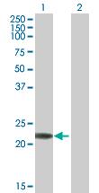 Western blot - RAB7B antibody (ab77064)