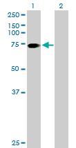 Western blot - SLC6A17 antibody (ab77067)
