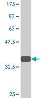 Western blot - TSPAN2 antibody (ab77105)