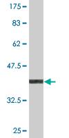 Western blot - USPL1 antibody (ab77108)
