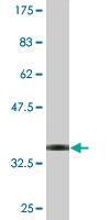 Western blot - SLC9A6 antibody (ab77110)