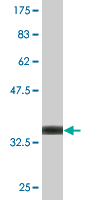 Western blot - BLMH antibody (ab77111)