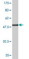 Western blot - SSSCA1 antibody (ab77112)