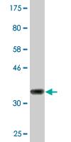 Western blot - CIDE C antibody (ab77115)