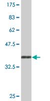 Western blot - FOXP4 antibody (ab77141)