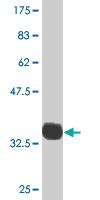 Western blot - PDLIM1 antibody (ab77142)