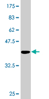 Western blot - TTC4 antibody (ab77143)