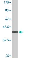 Western blot - SC65 antibody (ab77149)