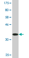 Western blot - YKT6 antibody (ab77150)