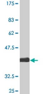 Western blot - KLRA1 antibody (ab77152)