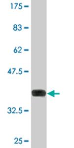 Western blot - NTE antibody (ab77153)