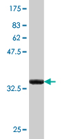Western blot - HSPA1L antibody (ab77155)