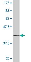 Western blot - PKIG antibody (ab77156)