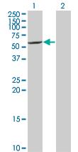 Western blot - CYP7B1 antibody (ab77157)