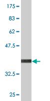Western blot - CRMP5 antibody (ab77158)