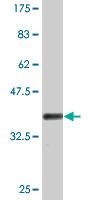 Western blot - Fructose 6 Phosphate Kinase antibody (ab77159)