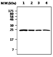 Western blot - Casein Kinase 2 beta antibody (ab77162)