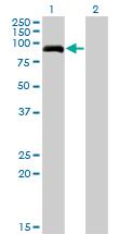 Western blot - PDE8A antibody (ab77181)
