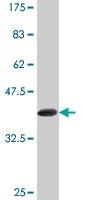 Western blot - FBXL3 antibody [1A3] (ab77200)