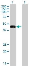 Western blot - ZNF3 antibody (ab77201)