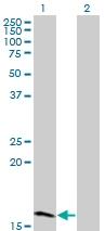 Western blot - ZNF44 antibody (ab77202)