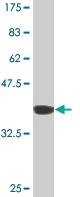 Western blot - Coronin 3 antibody (ab77203)