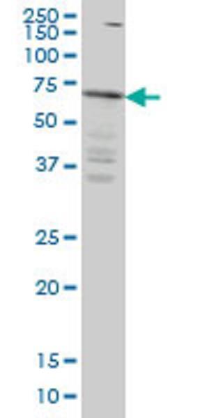 Western blot - IRAKM antibody [not given] (ab77216)