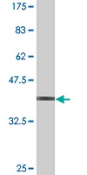 Western blot - TNRC6B antibody (ab77218)