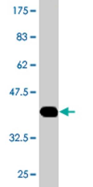 Western blot - HAAO antibody (ab77220)