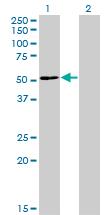 Western blot - ZNF323 antibody (ab77221)