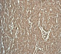 Immunohistochemistry (Formalin/PFA-fixed paraffin-embedded sections) - Myoglobin antibody [EP3081Y] (ab77232)