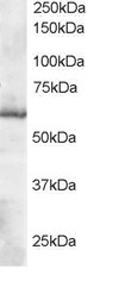 Western blot - TXNRD1 antibody (ab77254)