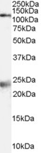 Western blot - NMDAR1 antibody (ab77264)